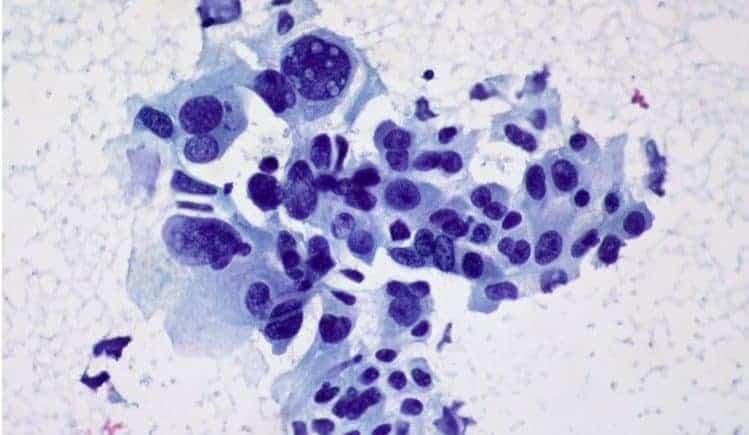 atezolizumab niedrobnokomórkowy rak płuca