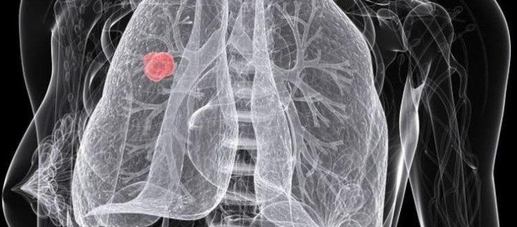 Tumour Defence Breaker - technologia