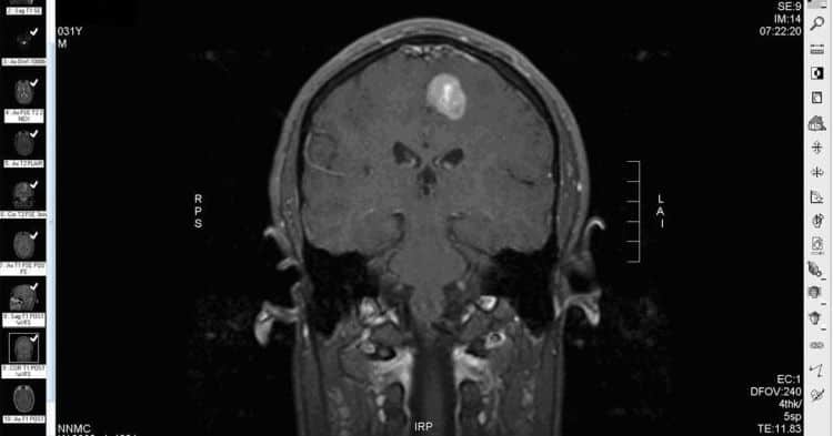 immunoterapia guza mózgu glejaka
