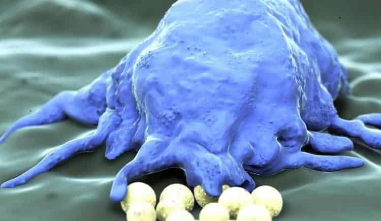 co to jest immunoonkologia