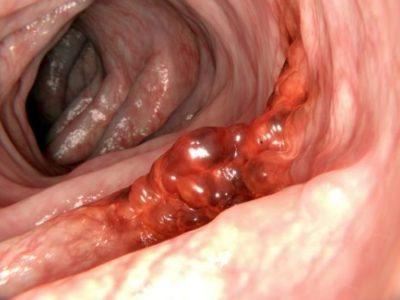 immunoterapia raka trzustk