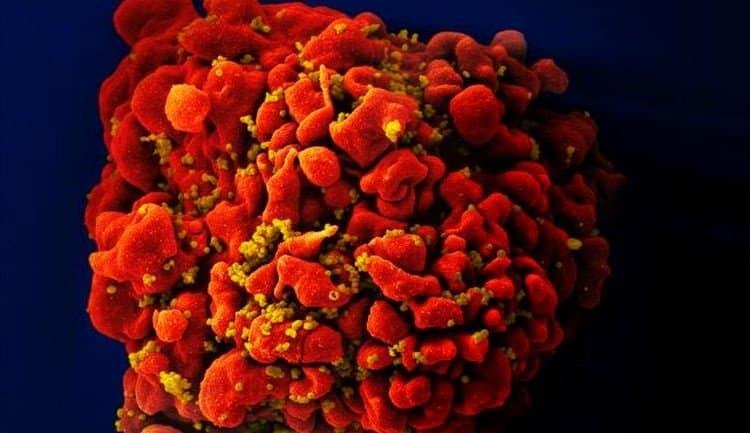 immunoterapia CAR-T limfocyty T