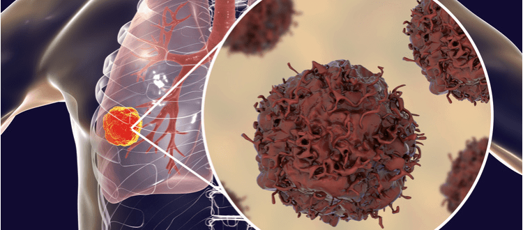 program lekowy immunoterapia rak płuca