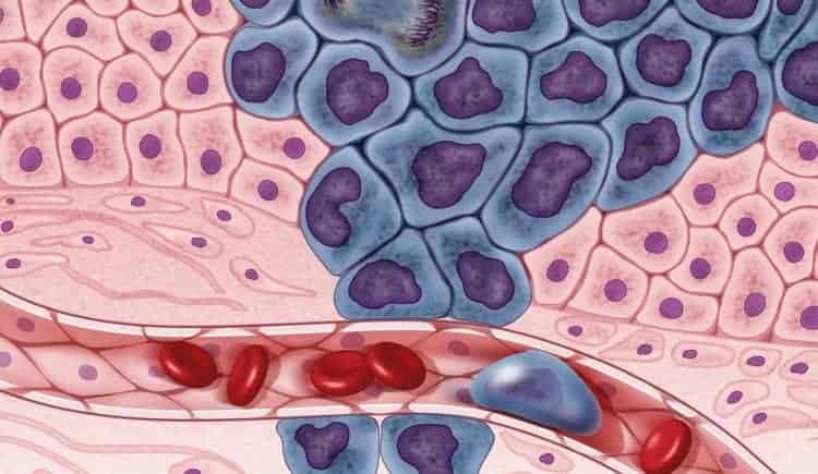 immunoterapia rak piersi
