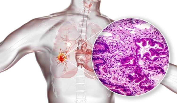 durwalumab rak płuca drobnokomórkowy