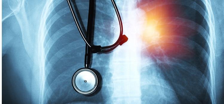 priorytety immunoterapia rak płuca