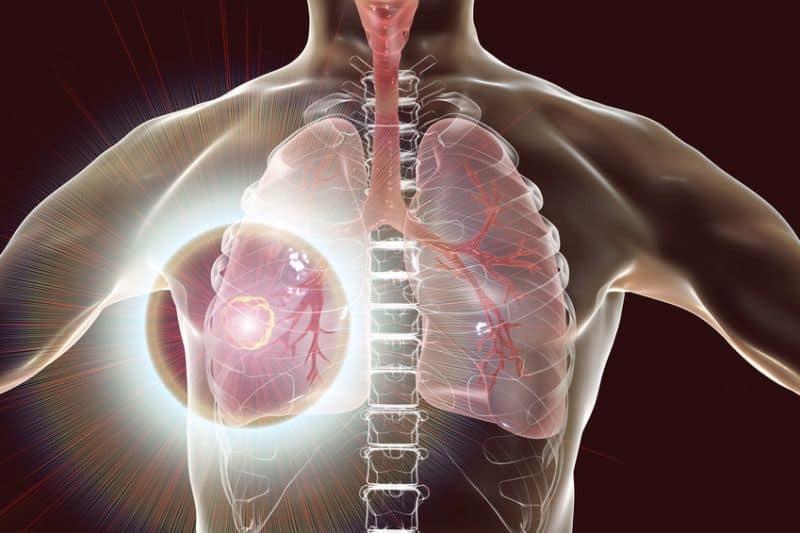 leczenie raka płuca