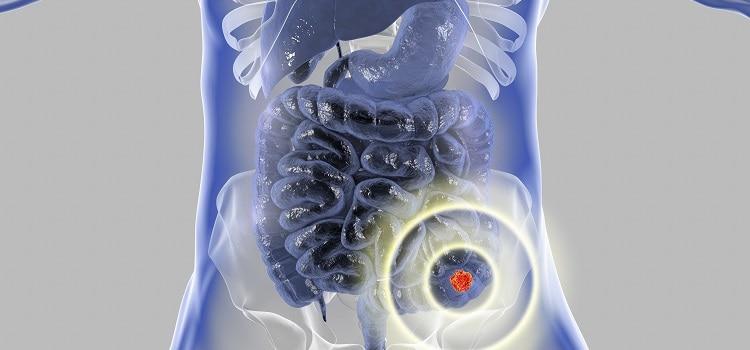 skojarzona immunoterapia rak jelita grubego niwolumab